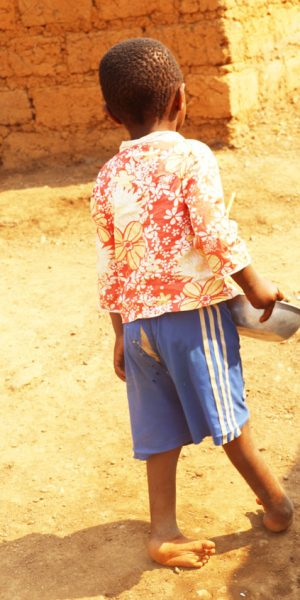A-child-with-clubfoot-has-difficulties-in-walking